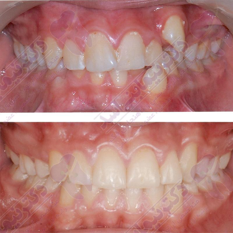 ارتودنسی ثابت با کشیدن دندان