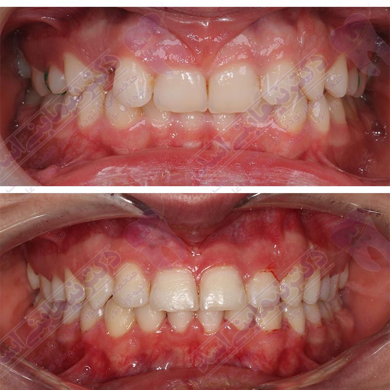 ارتودنسی ثابت بدون کشیدن دندان