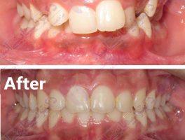 قبل و بعد ارتودنسی – نمونه ارتودنسی ثابت شماره 10