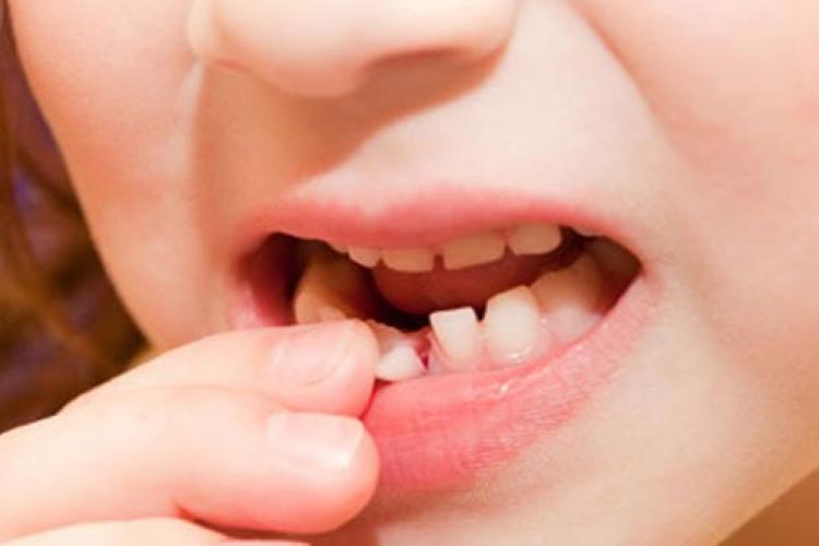 لق شدن دندان در طول درمان ارتودنسی