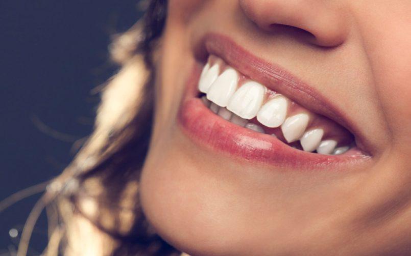 نیروهایی که دندان ها را حرکت می دهند