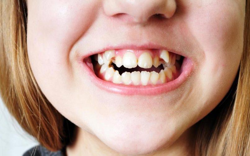 دندان های دائمی با چه روندی رشد می کنند؟