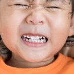 چرا کودکان دندان اضافه دارند؟