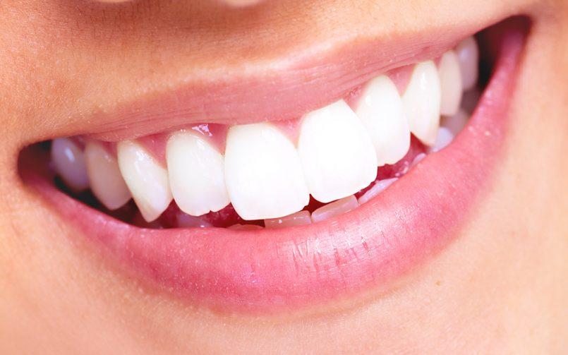 چرا زیبایی دندانها ضروری است؟