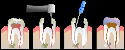 عصب کشی دندان دارای چه مراحلی است؟
