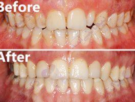 بیمار۲۵ساله با نامرتبی دندان های بالا و پایین و بدشکلی دندانهای لترال بالا(پیشین کناری)